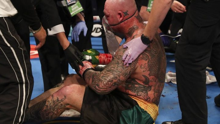 Lucas Browne: Dillian Whyte loss 'a kick in the butt', led to team changes