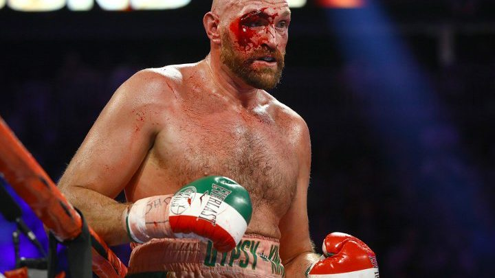 Fury: Cut Changed The Fight, I Could Not See Out of That Eye