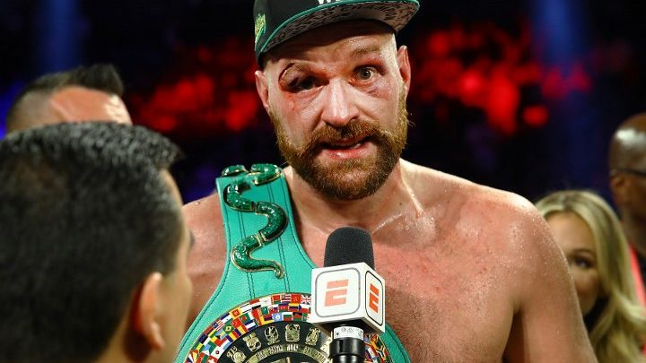 Tyson Fury: Doctors Did Fantastic Job, Got Fifty Stitches