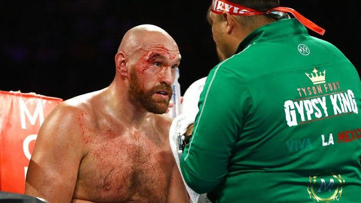 Hearn: Fury is Very Lucky, in Any Other Country Fight is Stopped